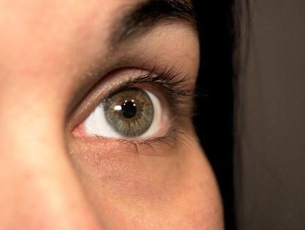 О чем говорят темные круги под глазами и как от них избавиться