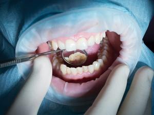 Лайфхак, который позволит бесплатно вылечить зубы в платной клинике